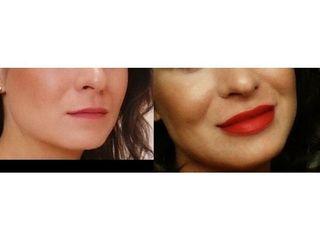 Przed i po - powiększenie ust