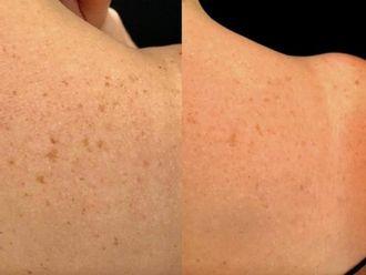 Laserowe zabiegi dermatologii estetycznej-785938