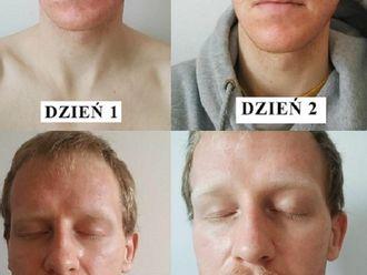 Laserowe leczenie trądziku-785942
