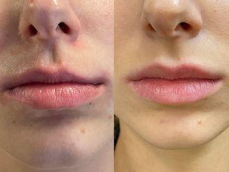 Powiększanie ust kwasem hialuronowym-785947