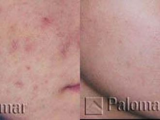 Laserowe leczenie trądziku-656043