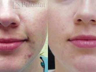 Laserowe leczenie trądziku-656046