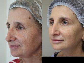 Anti aging - medycyna przeciwstarzeniowa - 660328