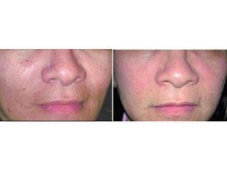 Przed i po: anti-aging