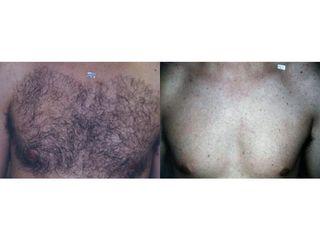 Przed i po: depilacja laserowa