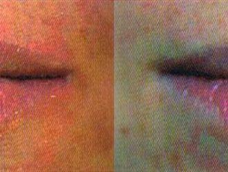 Powiększanie ust kwasem hialuronowym-653937