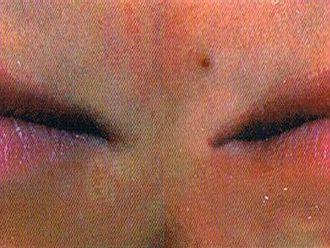 Powiększanie ust kwasem hialuronowym-653938