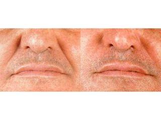 Wypełnianie bruzd wargowo-nosowych kwasem hialuronowym - efekty.
