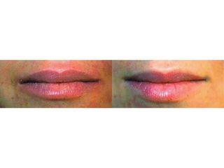 Powiększanie ust kwasem hialuronowym - efekty