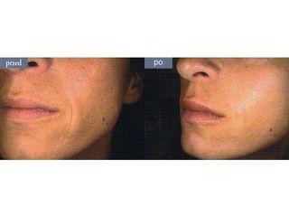 Wypełnianie zmarszczek wargowo-nosowych kwasem hialuronowym - efekty