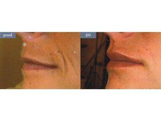 Wypełnianie bruzd wargowo-nosowych kwasem hialuronowym - efekty