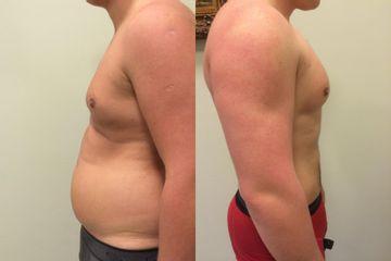Przed i po: liposukcja Vaser Lipo