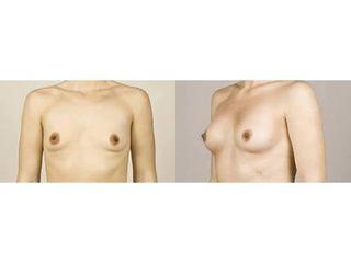 Przed i po - powiększanie piersi Macrolane