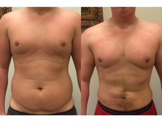 Przed i po - liposukcja Vaser Lipo
