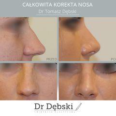 Korekta nosa: przed i po