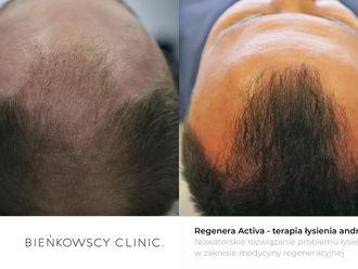 Przeszczep włosów - transplatacja włosów-652150