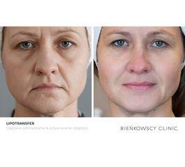 Lipotransfer / Przywracanie objętości skóry