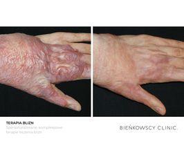 Terapia blizn / Spersonalizowane, kompleksowe leczenie blizn