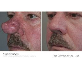 Terapia rhinophyma / Małoinwazyjny zabieg dermatochirurgiczny