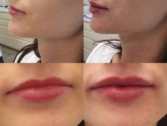 Powiększanie ust kwasem hialuronowym-698451