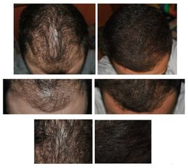 Mezoterapia skóry głowy - przed i po - dr n. med. Dominik Ludew