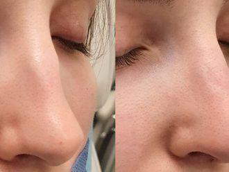 Korekta nosa kwasem hialuronowym-698461