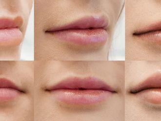 Korekta nosa kwasem hialuronowym-698464