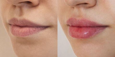 Modelowanie ust kwasem hialuronowym - dr n. med. Dominik Ludew