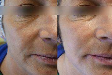 Odmładzanie twarzy kwasem hialuronowym - dr n. med. Dominik Ludew
