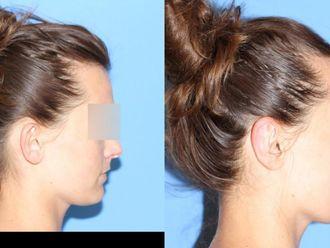 Korekcja uszu (Otoplastyka)-653468