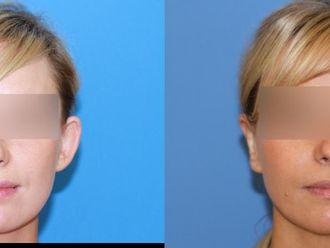 Korekcja uszu (Otoplastyka)-653482