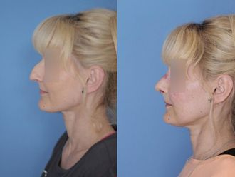Korekcja nosa (Operacja nosa)-653576
