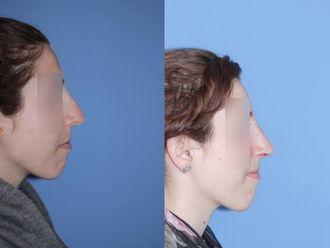 Korekcja nosa (Operacja nosa)-653582