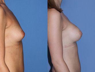 Powiększanie piersi (Augmentacja)-653617