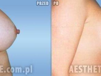 Powiększanie piersi (Augmentacja)-651515