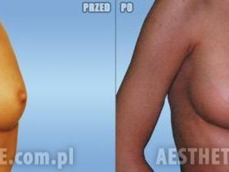 Powiększanie piersi (Augmentacja)-651523