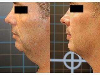 Liposukcja podbródka - przed i po