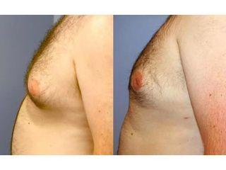 Usuwanie ginekomastii - przed i po