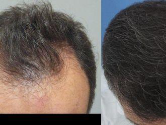 Przeszczep włosów - transplatacja włosów-658262