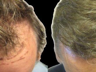 Przeszczep włosów - transplatacja włosów-658266
