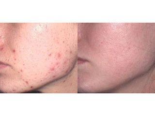 Leczenie trądziku - przed i po
