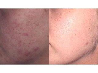 Usuwanie blizn potrądzikowych - przed i po