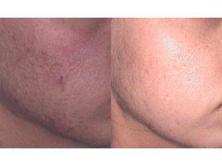 Korekcja blizn potrądzikwych - przed i po