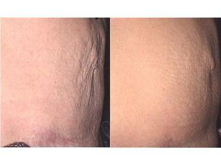Lifting skóry - przed i po