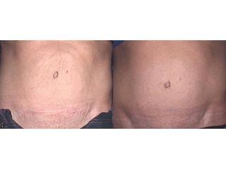 Korekta skóry brzucha - przed i po