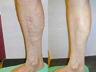 Laserowe leczenie żylaków EVLA-656096