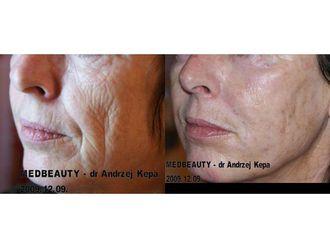 Anti-aging-689525