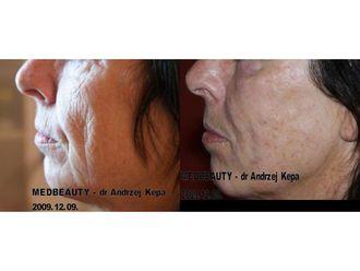 Anti-aging-689527