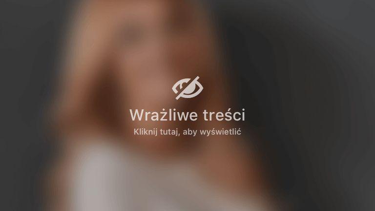 Liposukcja ud (bryczesów) metodą Vaser Lipo
