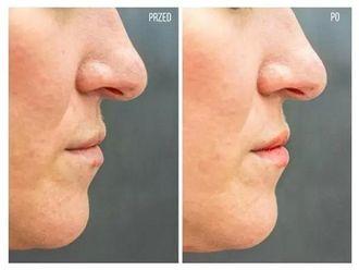 Powiększanie ust kwasem hialuronowym-656133
